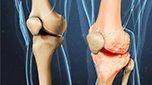 Bất ngờ phát hiện hoạt chất mới cực tốt cho bệnh xương khớp